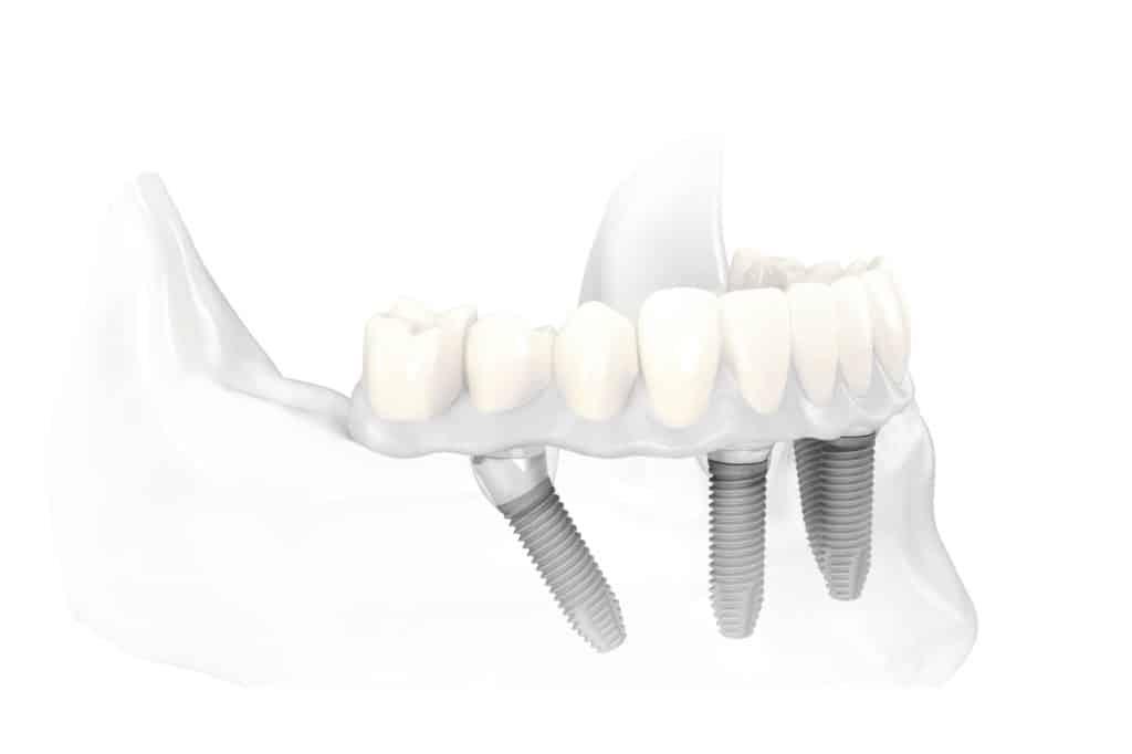 Dental Implant Services All on 4 Dental Implants Scottsdale