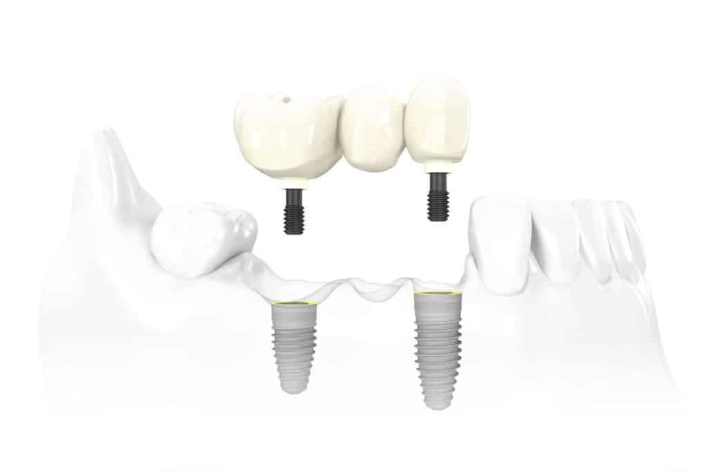 Dental Implant Services Multi-Tooth Dental Implants Scottsdale