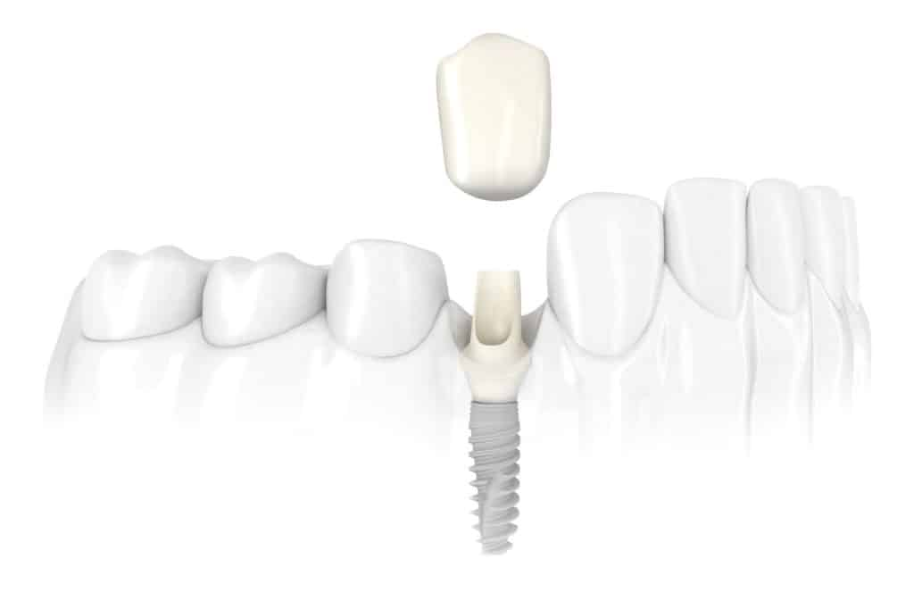Dental Implant Services Single Tooth Dental Implants Scottsdale