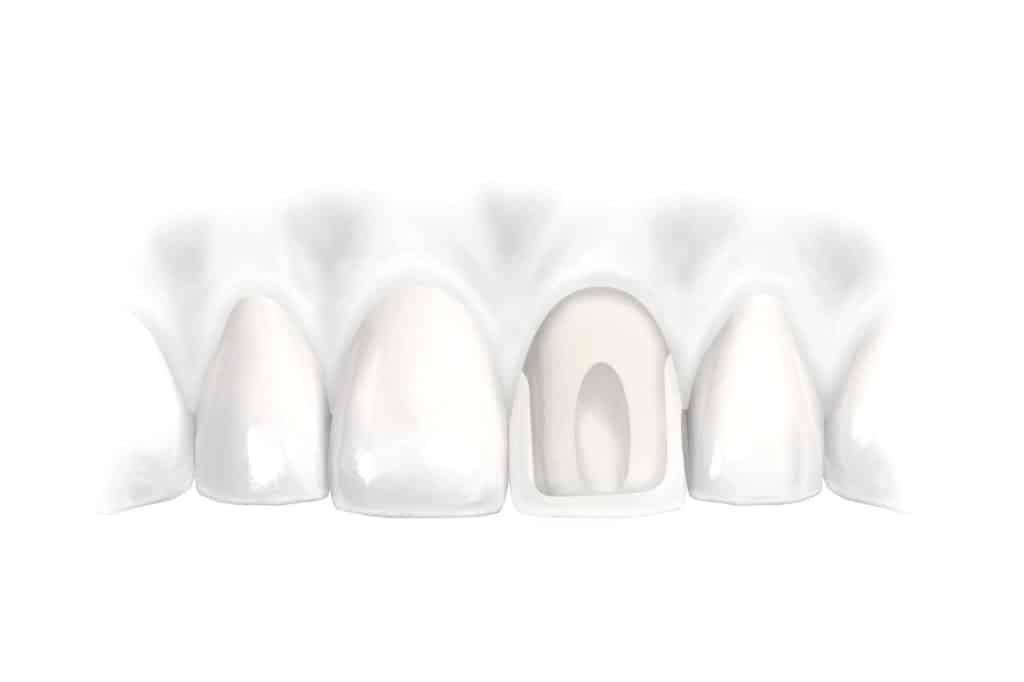 Dental Implant Services Teeth in One Day Dental Implants Scottsdale